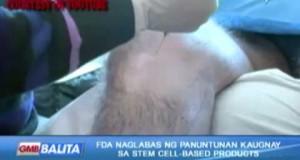 FDA-naglabas-ng-panuntunan-kaugnay-ng-stem-cell-based-products