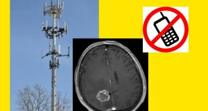 Mobile Phones and Cancer? Do Cell Towers and Phones cause Brain Tumor's?